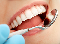 Tooth Whitening, Cosmetic Dentistry & Dental Implants